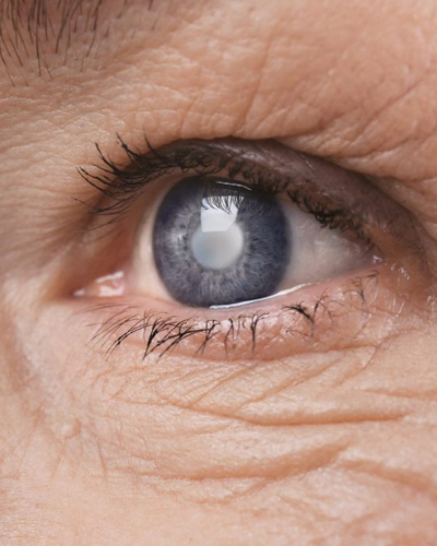 ProCare Troy Ohio Cataract Treatment