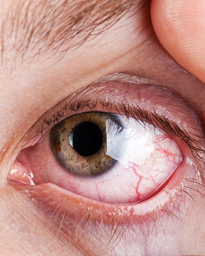 ProCare Troy Ohio Treatment of Eye Infections and Eye Injuries