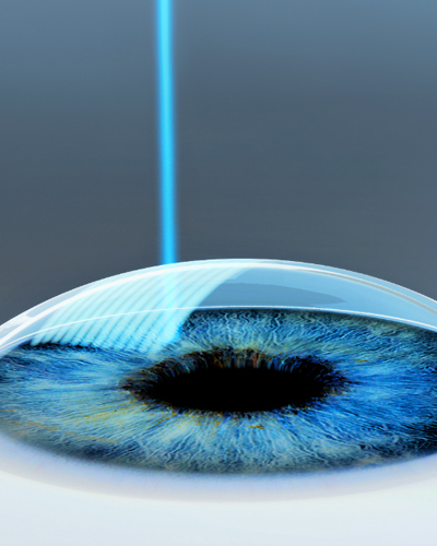 ProCare Troy Ohio Keratoconus